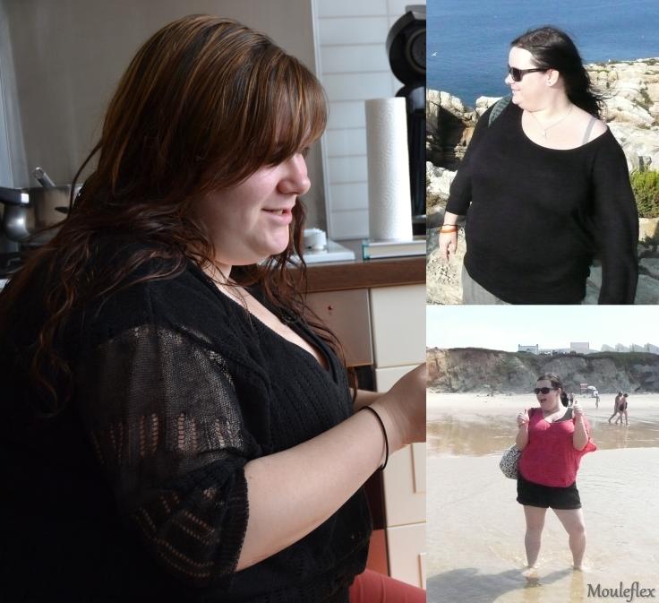 Obésité 1
