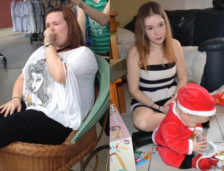 obésité 3